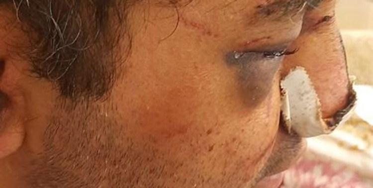 ضرب و شتم متخصص بیهوشی در پیرانشهر