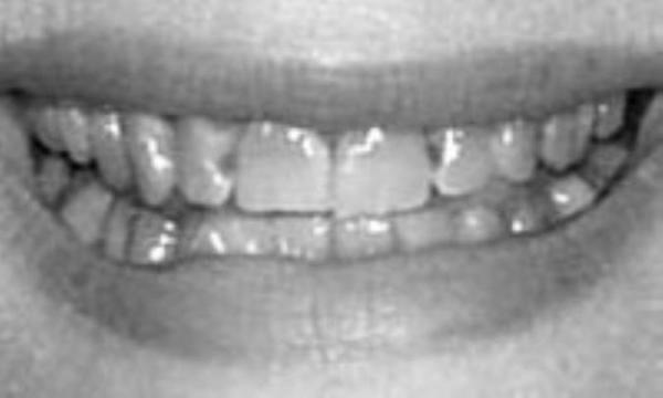 علت سیاهی دندان ها